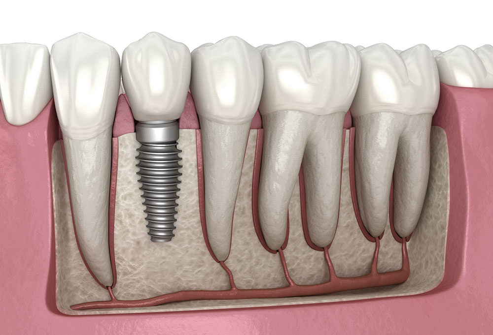 Tips for Dental Implants Proper Care
